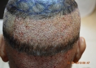 what-will-happen-after-hair-transplant
