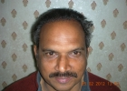 Hair Transplant result in Pakistan