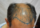 hair-restoration-lahore