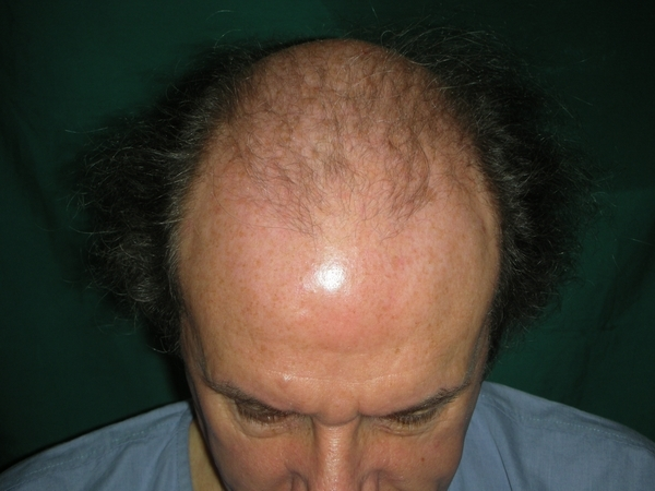 Norwood class 6 hair transplant in Pakistan