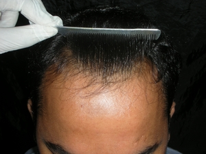 Hairline in Lahore photo