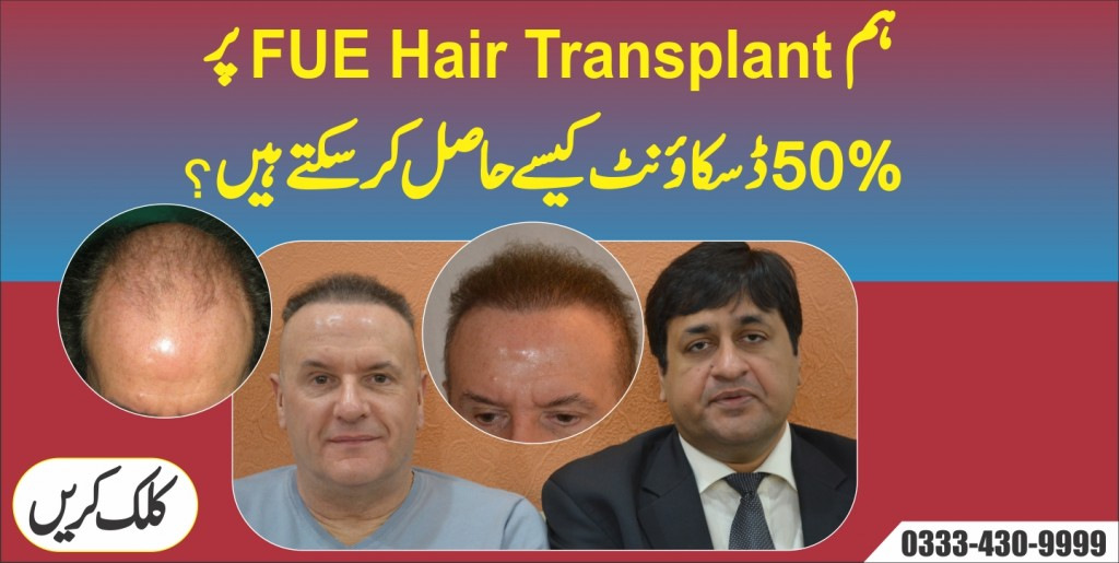 Fue hair transplant in Pakistan