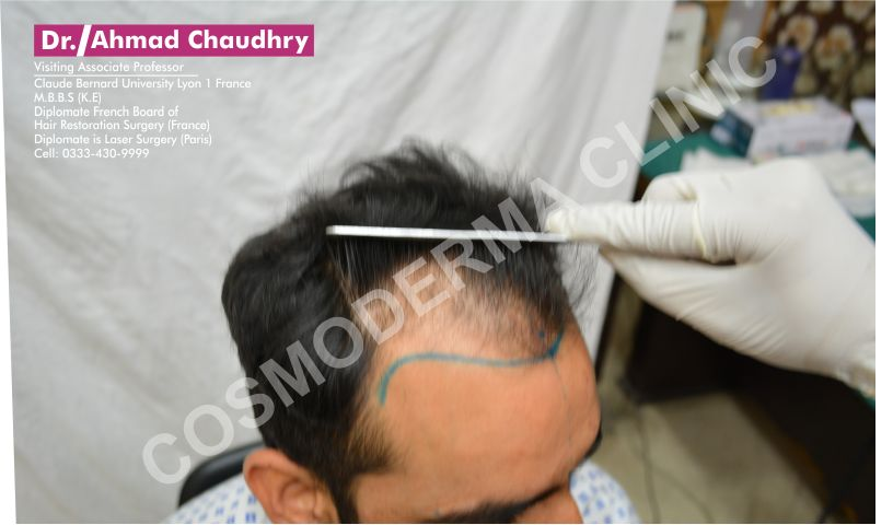 Hair restoration in Pakistan deigning