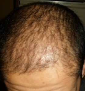 Hair loss treatment in Pakistan