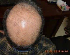 Candidate hair transplant surgery