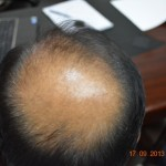 Estimated expense of hair transplant in Pakistan