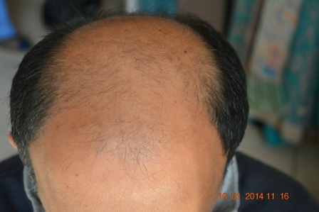 Hair Restoration Clinic Lahore