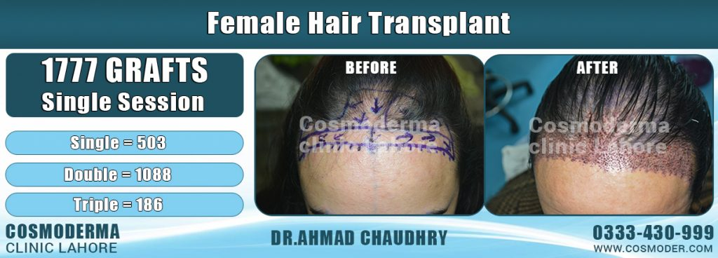 Female hair transplant Lahore